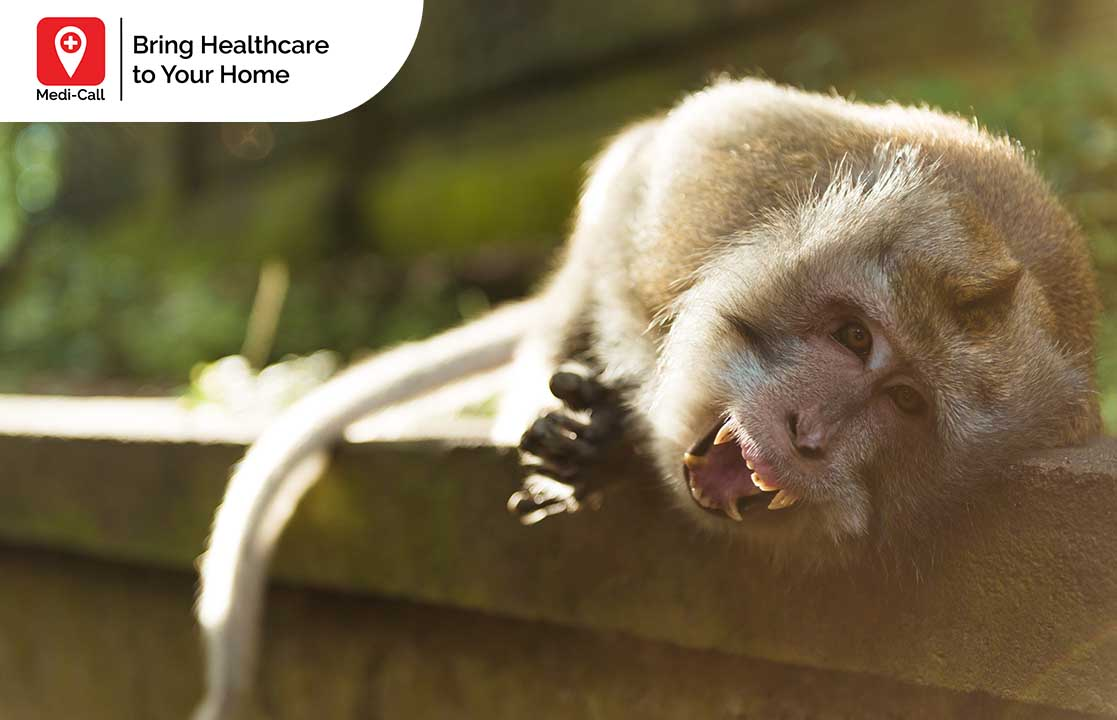 signs of rabies in wild animals, rabies vaccine, rabies vaccination service, medi-call, medicall