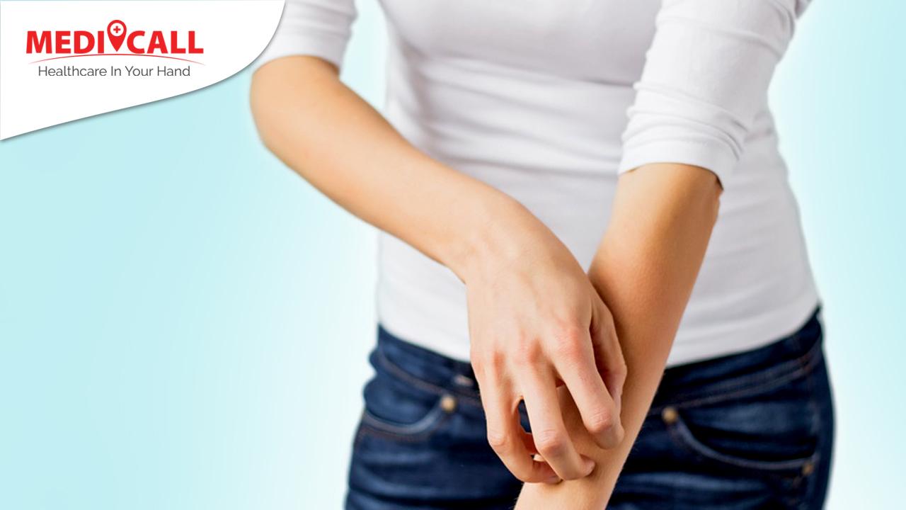 menghilangkan bentol, cara menghilangkan bentol, bentol merah pada kulit, bentol merah dan gatal, solusi bentol merah